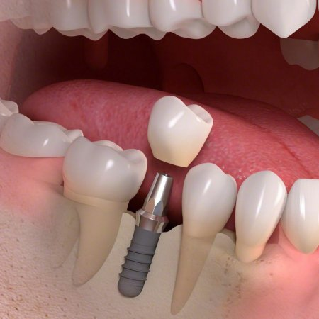 Implant supported fixed teeth